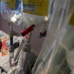 أميركا.. عقار جديد لعلاج سرطان الرئة