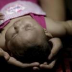 منظمة الصحة العالمية تجري اجتماع عاجل حول فايروس زيكا