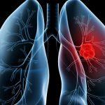 نوعان جديدان من الأدوية يطيلان أعمار المصابين بالسرطان