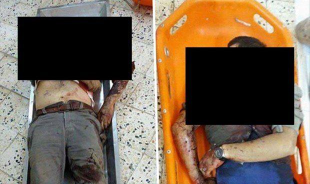 ضحايا قصف قوات الكرامة على طريق الحيلة جنوب درنة.
