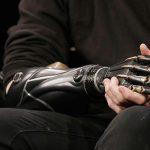 إسبانيا.. يدٌ روبوتية لمرضى شلل الأطراف