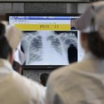 إصابة بشرية جديدة بإنفلونزا الطيور في الصين