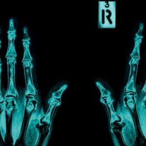 باحثون بقطر يكشفون الأسس الوراثية لالتهاب المفاصل الرَثَياني للعرب