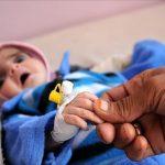 مستشفى يمني يطلق نداء استغاثة بعد تفشي الكوليرا