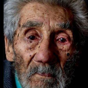 نَجَاةُ «أقْدمِ إنْسانٍ عَلى وجه الأرض »عمره 121 عاماً من «حَريقِ غَريبِ»