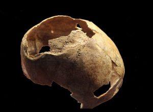 علماء آثار.. عملية جراحية جرت قبل 5 آلاف عام لجمجمة «بمشرط حجري»