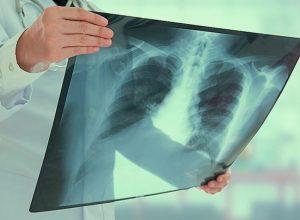 بحدث طبي «نادر».. باحثون يكتشفون أعضاء جديدة في الإنسان